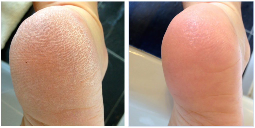 No mean feet superdrug goodies feat scholl and freeman for Fish pedicure before and after